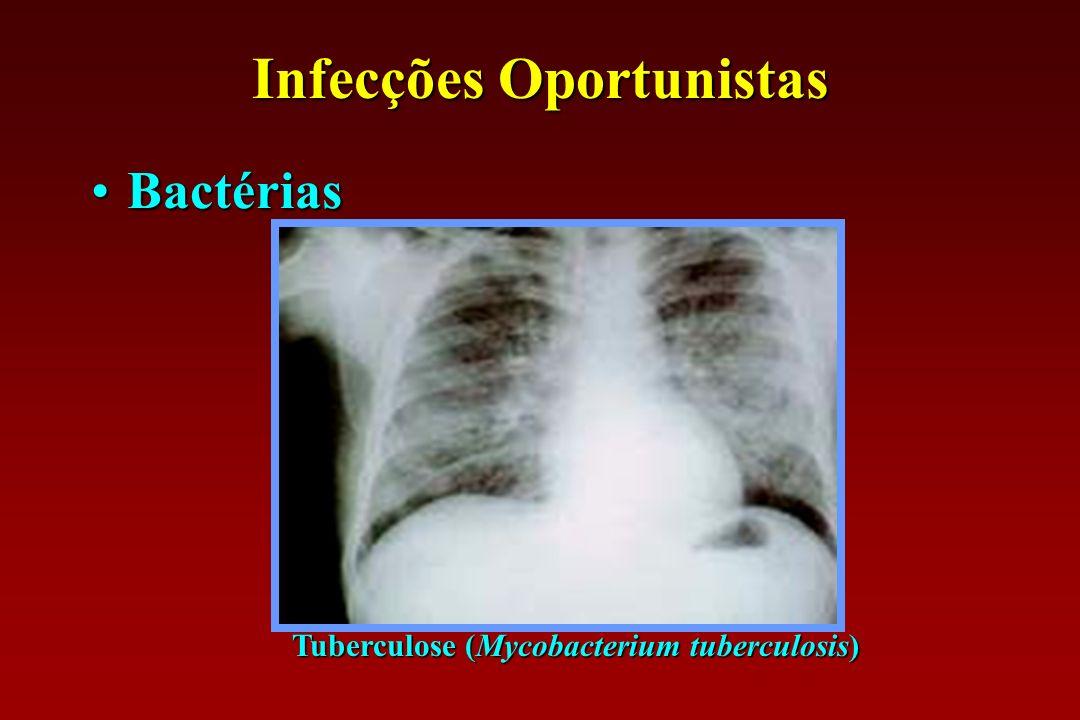 Infecções Oportunistas BactériasBactérias Tuberculose (Mycobacterium tuberculosis)