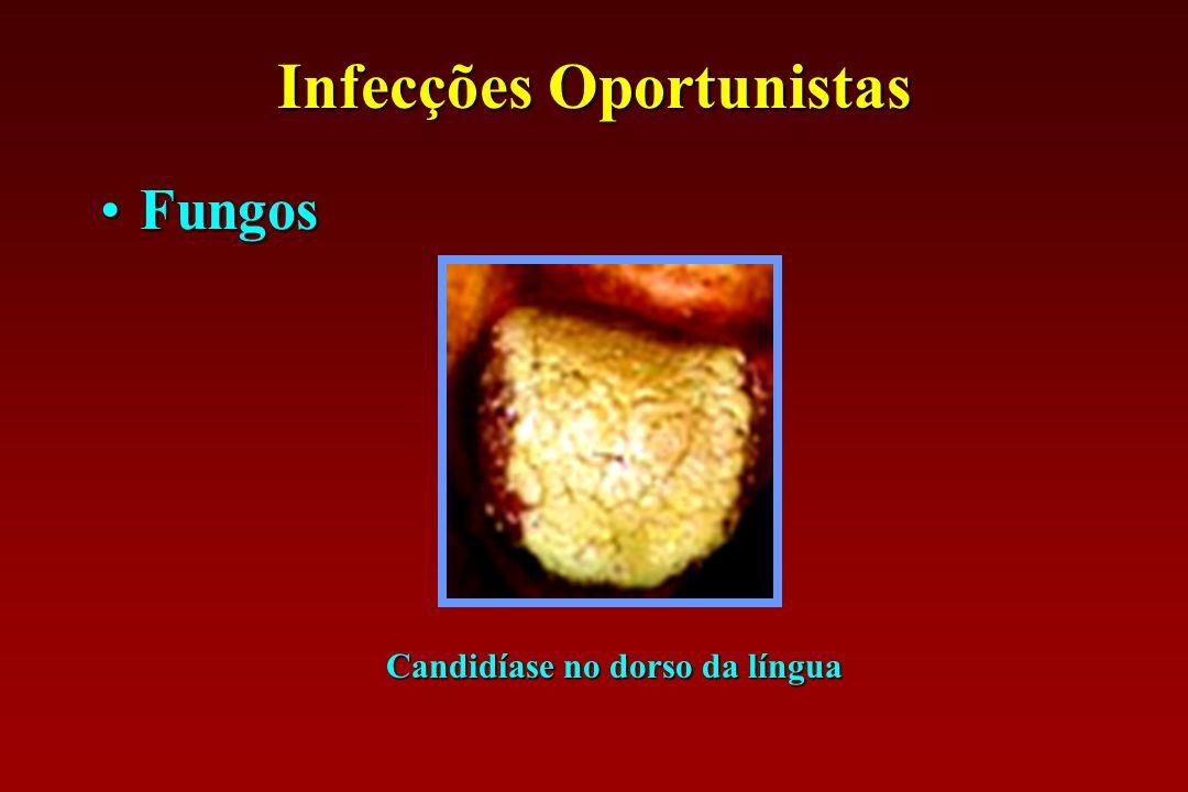 Infecções Oportunistas FungosFungos Candidíase no dorso da língua