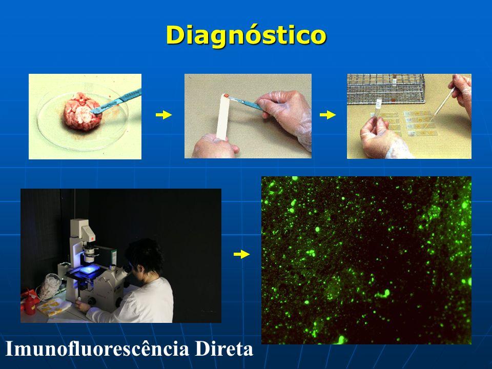 Diagnóstico Diagnóstico Imunofluorescência Direta