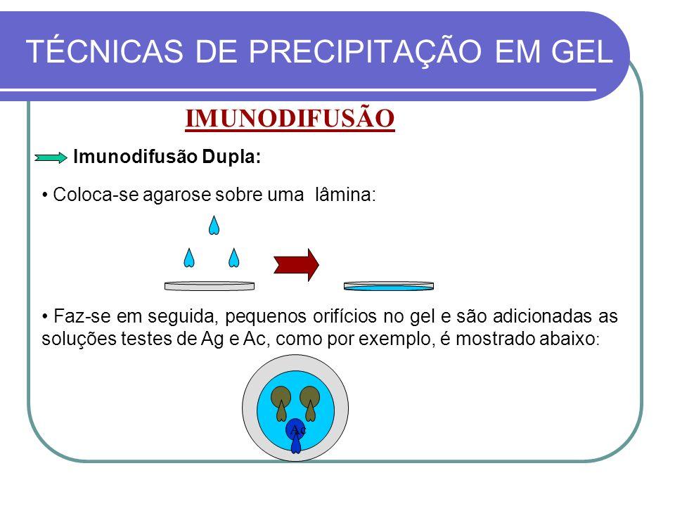 TÉCNICAS DE PRECIPITAÇÃO EM GEL IMUNODIFUSÃO Coloca-se agarose sobre uma lâmina: Imunodifusão Dupla: Faz-se em seguida, pequenos orifícios no gel e sã