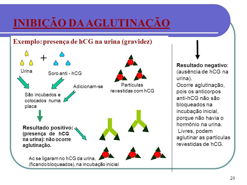 20 Exemplo: presença de hCG na urina (gravidez) INIBIÇÃO DA AGLUTINAÇÃO + Soro anti - hCG Urina São incubados e colocados numa placa Adicionam-se Part