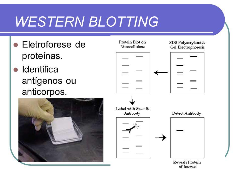 WESTERN BLOTTING Eletroforese de proteínas. Identifica antígenos ou anticorpos.