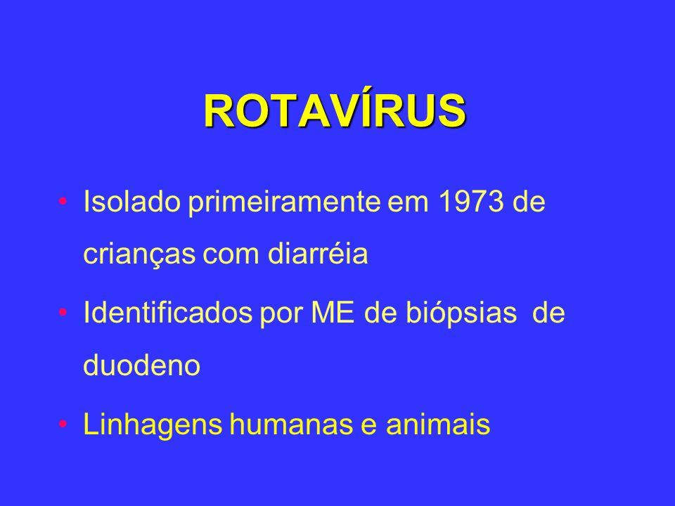 ROTAVÍRUS Isolado primeiramente em 1973 de crianças com diarréia Identificados por ME de biópsias de duodeno Linhagens humanas e animais