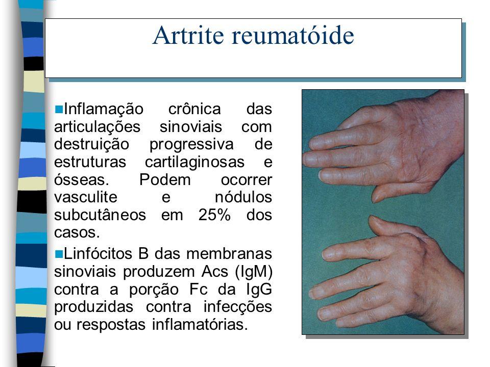 Artrite reumatóide Inflamação crônica das articulações sinoviais com destruição progressiva de estruturas cartilaginosas e ósseas. Podem ocorrer vascu