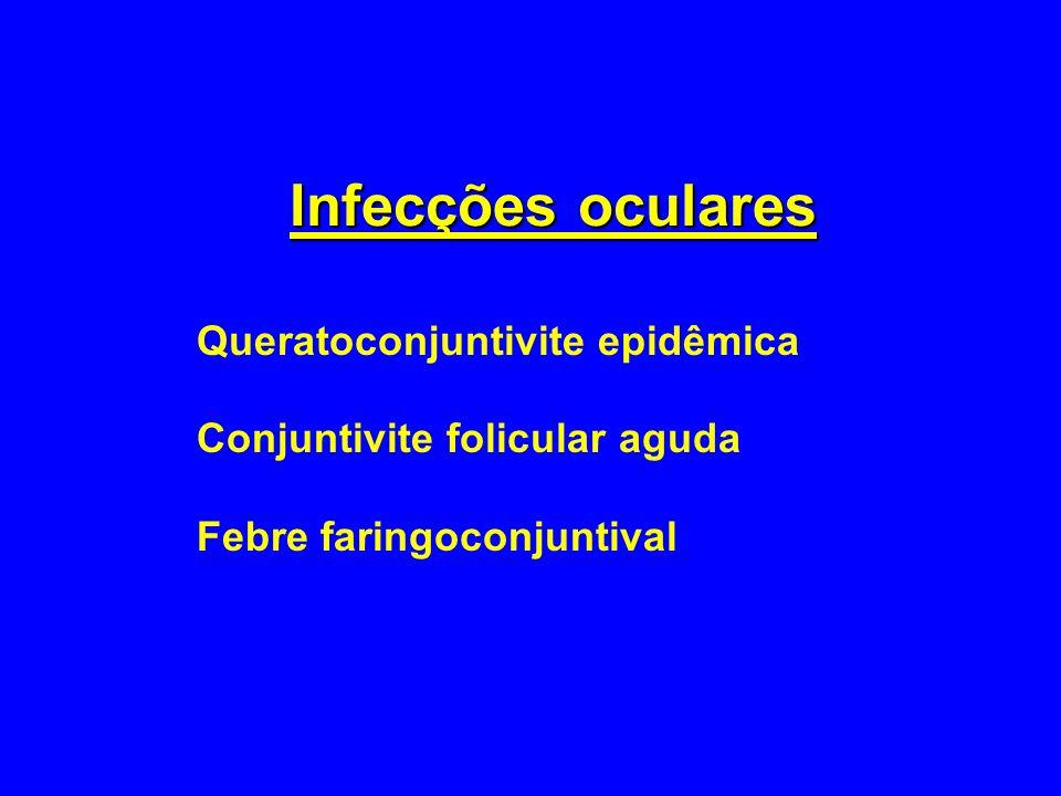 Infecções oculares Queratoconjuntivite epidêmica Conjuntivite folicular aguda Febre faringoconjuntival
