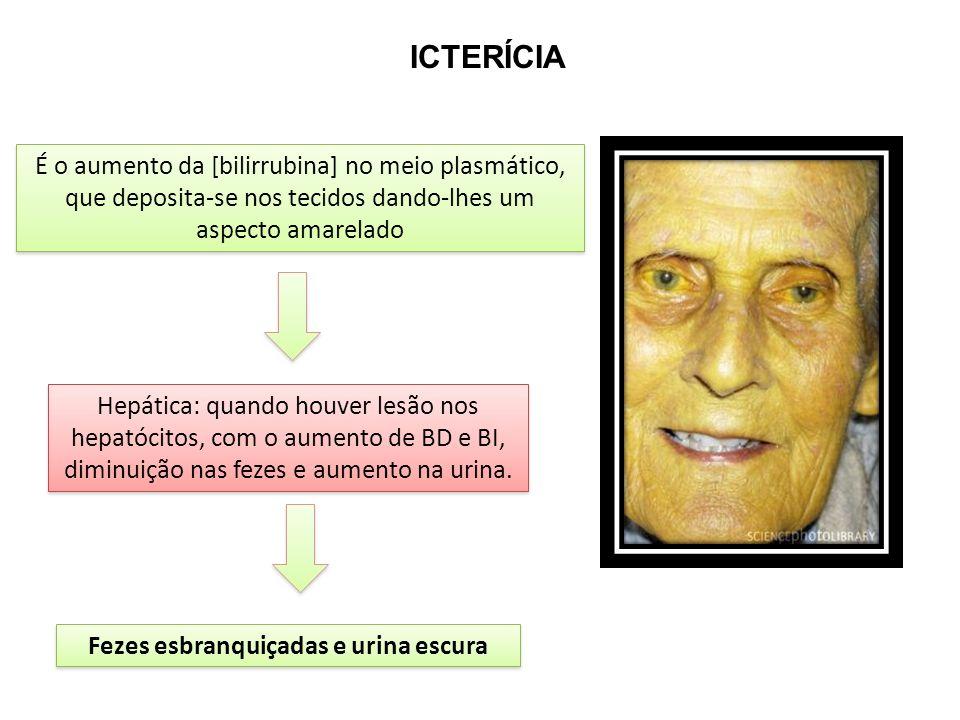 ICTERÍCIA É o aumento da [bilirrubina] no meio plasmático, que deposita-se nos tecidos dando-lhes um aspecto amarelado Hepática: quando houver lesão nos hepatócitos, com o aumento de BD e BI, diminuição nas fezes e aumento na urina.