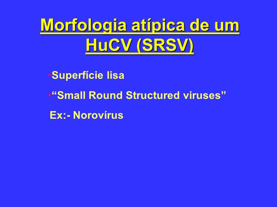Morfologia atípica de um HuCV (SRSV) Superfície lisa Small Round Structured viruses Ex:- Norovírus