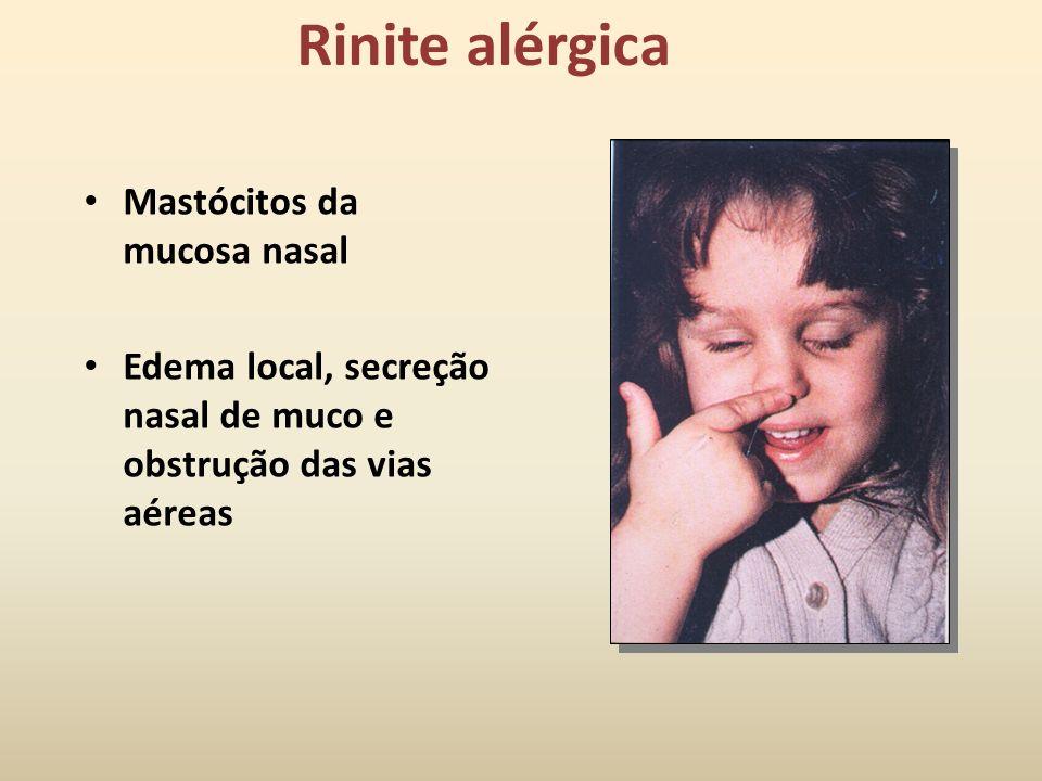 Impacto das doenças alérgicas Condição alérgica Número estimado de afetados (milhões) Rinite alérgica19.6 Sinusite crônica32.5 Dermatite de contacto &
