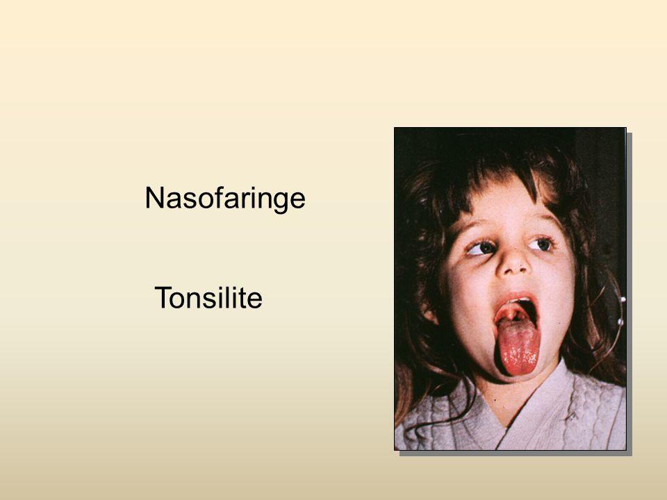 Nasofaringe Pólipos nasais