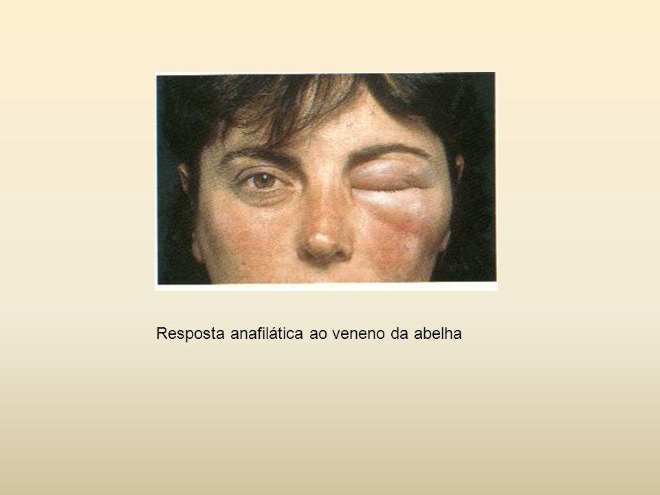 Pulmões Asma Mastócitos submucosos das vias aéreas inferiores muco/constrição brônquica/dificulda de na respiração