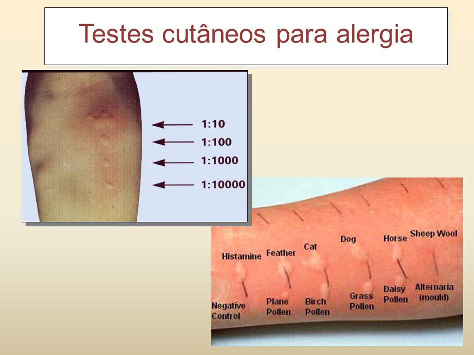 Diagnóstico Testes Cutâneos RIST (radioimmunosorbent tet) RAST (radioallergosobent test) RIST = determina os níveis totais de IgE RAST = determina os