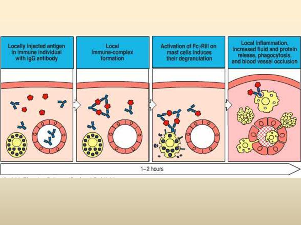 Reação estimulada por complexos imunes formados por Ac e Ag que se depositam em determinados locais do organismo; Os complexos vão induzir uma reação