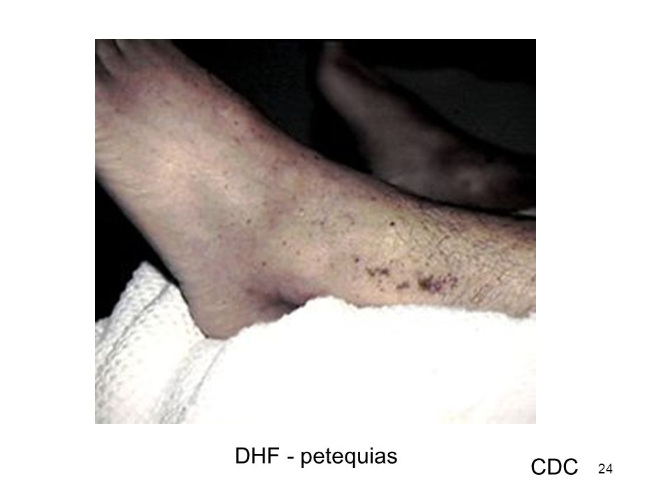 24 DHF - petequias CDC