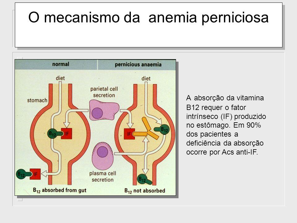 O mecanismo da anemia perniciosa A absorção da vitamina B12 requer o fator intrínseco (IF) produzido no estômago. Em 90% dos pacientes a deficiência d