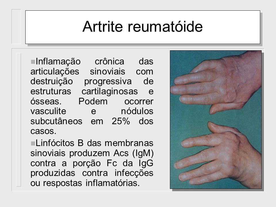 Artrite reumatóide n Inflamação crônica das articulações sinoviais com destruição progressiva de estruturas cartilaginosas e ósseas. Podem ocorrer vas