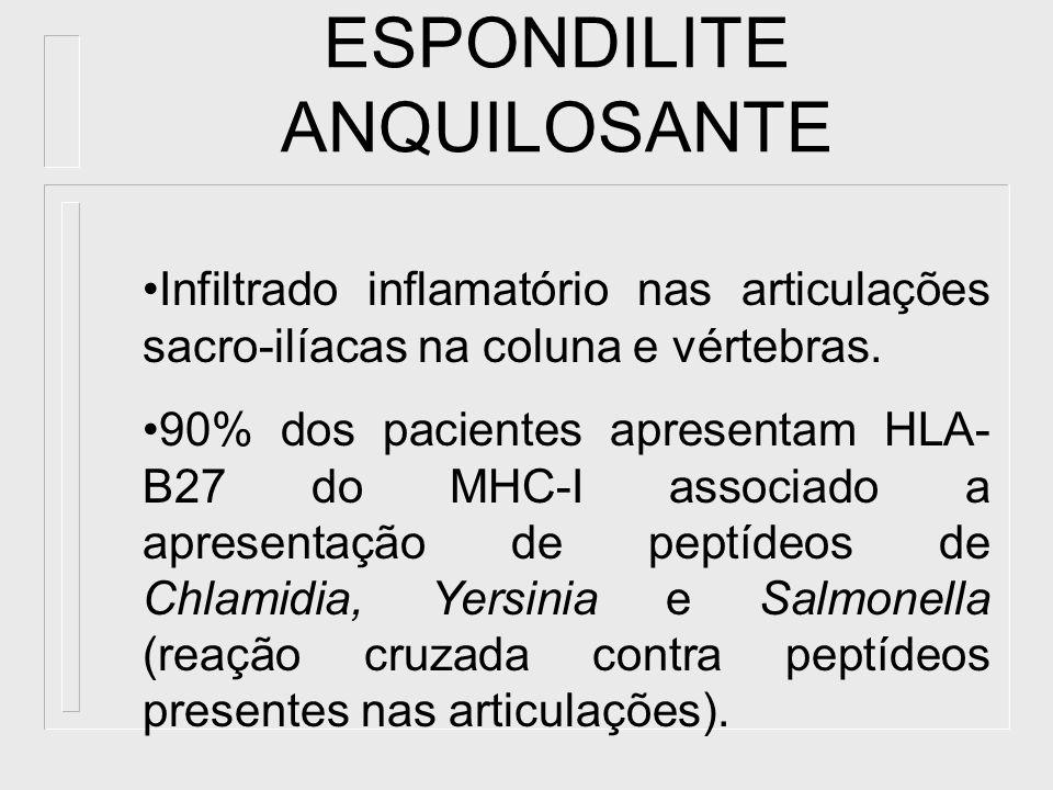 ESPONDILITE ANQUILOSANTE Infiltrado inflamatório nas articulações sacro-ilíacas na coluna e vértebras. 90% dos pacientes apresentam HLA- B27 do MHC-I