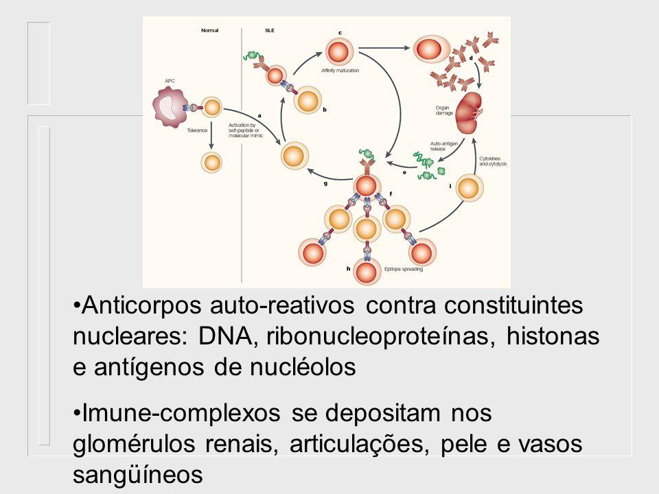 Anticorpos auto-reativos contra constituintes nucleares: DNA, ribonucleoproteínas, histonas e antígenos de nucléolos Imune-complexos se depositam nos