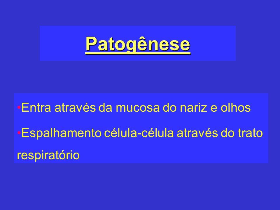 Patogênese Entra através da mucosa do nariz e olhos Espalhamento célula-célula através do trato respiratório