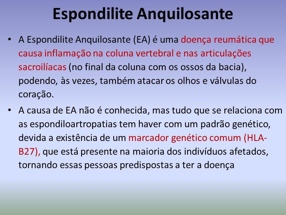 Espondilite Anquilosante A Espondilite Anquilosante (EA) é uma doença reumática que causa inflamação na coluna vertebral e nas articulações sacroilíac