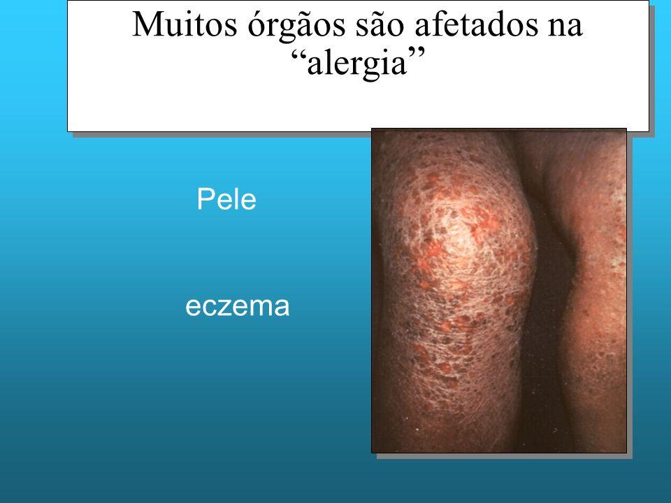 Muitos órgãos são afetados na alergia Pele eczema