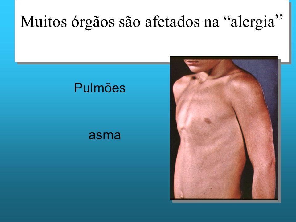 Muitos órgãos são afetados na alergia Pulmões asma