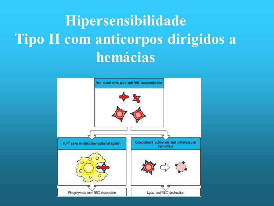 Hipersensibilidade Tipo II com anticorpos dirigidos a hemácias
