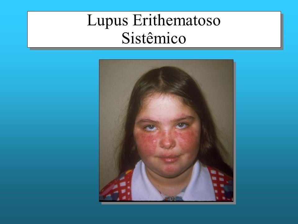 Lupus Erithematoso Sistêmico