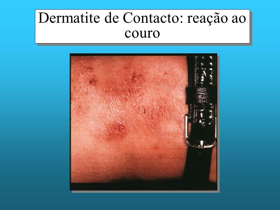 Dermatite de Contacto: reação ao couro