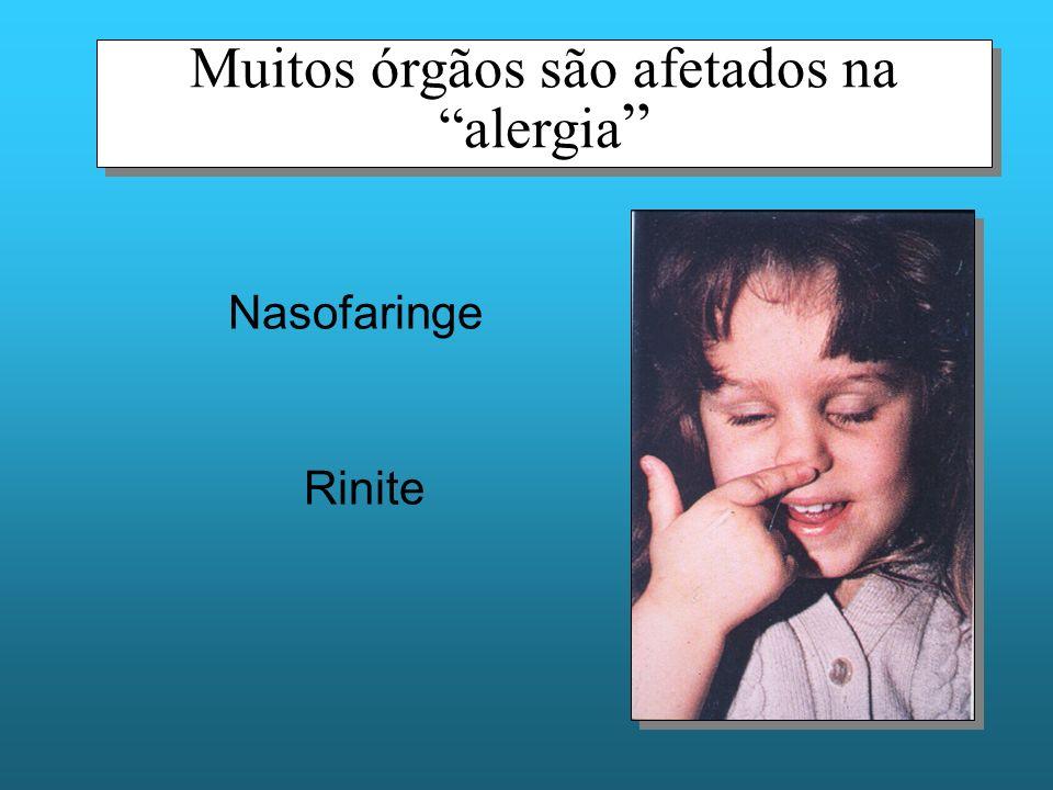 Muitos órgãos são afetados na alergia Nasofaringe Rinite