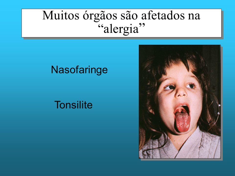 Muitos órgãos são afetados na alergia Nasofaringe Tonsilite