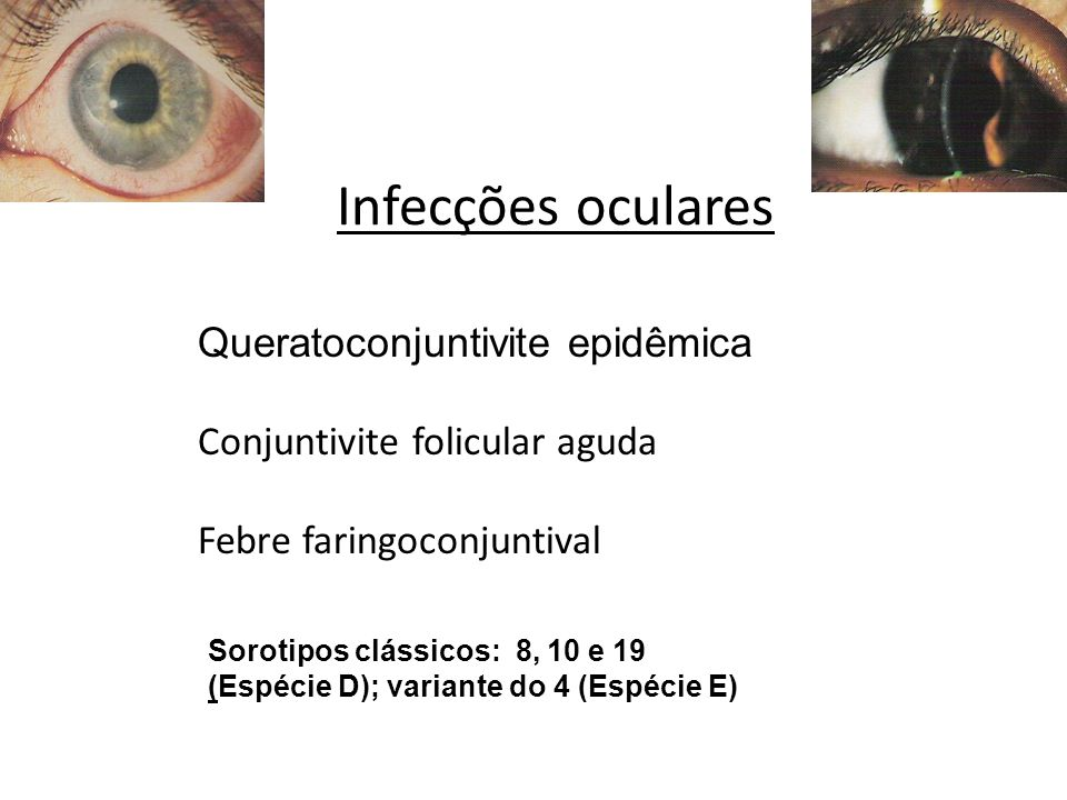 Infecções oculares Queratoconjuntivite epidêmica Conjuntivite folicular aguda Febre faringoconjuntival Sorotipos clássicos: 8, 10 e 19 (Espécie D); va