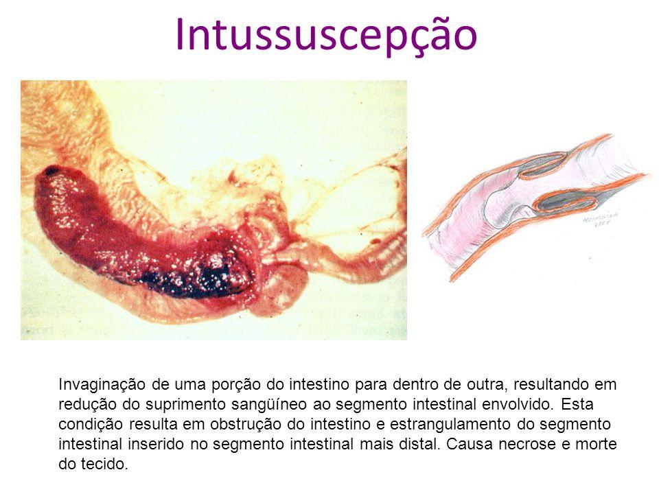 Intussuscepção Invaginação de uma porção do intestino para dentro de outra, resultando em redução do suprimento sangüíneo ao segmento intestinal envol