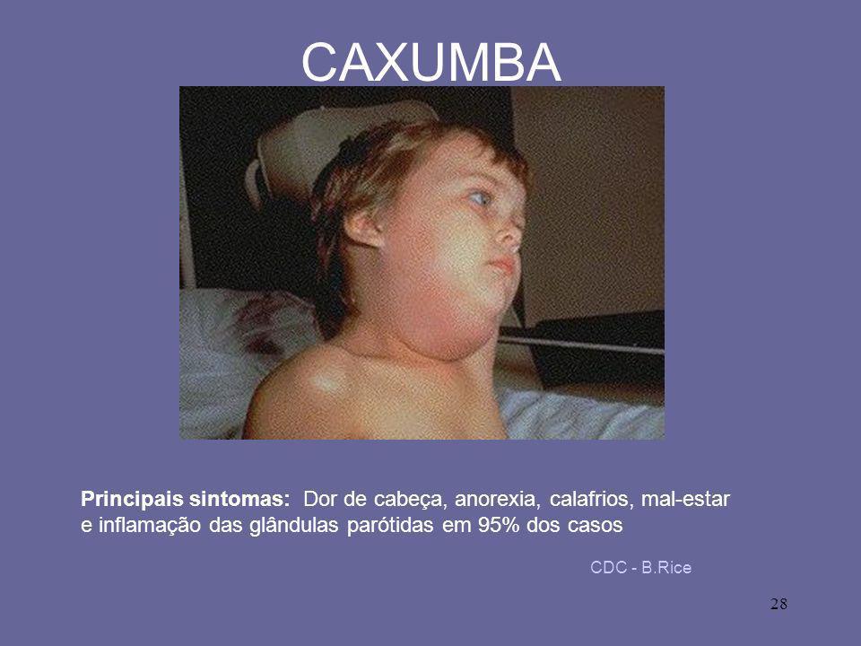28 CAXUMBA CDC - B.Rice Principais sintomas: Dor de cabeça, anorexia, calafrios, mal-estar e inflamação das glândulas parótidas em 95% dos casos