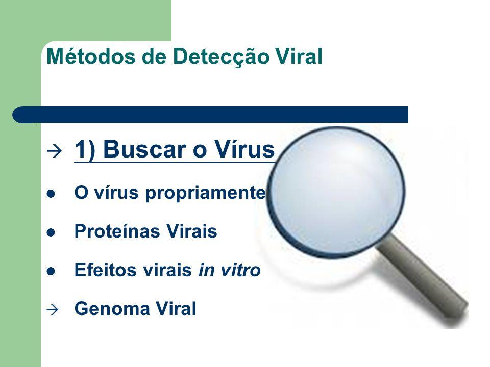 Métodos de Detecção Viral 1) Buscar o Vírus O vírus propriamente Proteínas Virais Efeitos virais in vitro Genoma Viral