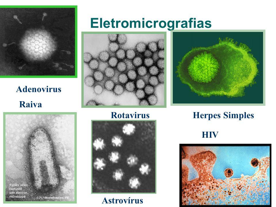 Eletromicrografias Adenovirus RotavirusHerpes Simples Raiva Astrovírus HIV