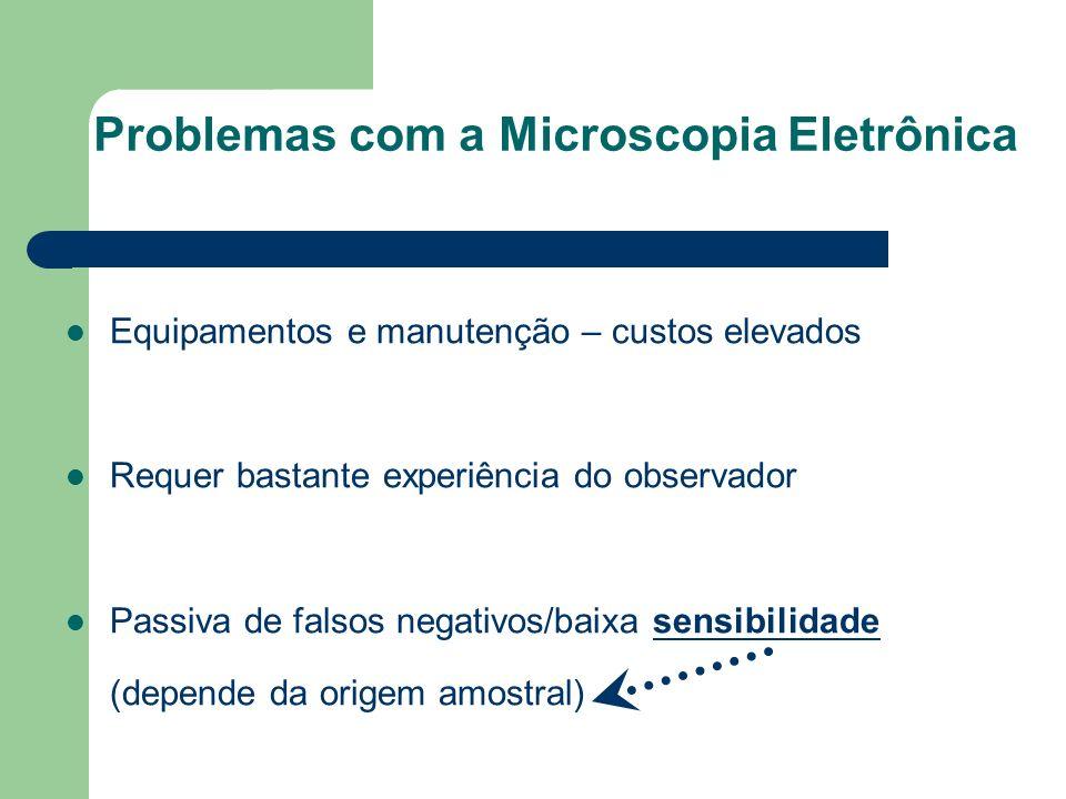 Problemas com a Microscopia Eletrônica Equipamentos e manutenção – custos elevados Requer bastante experiência do observador Passiva de falsos negativ