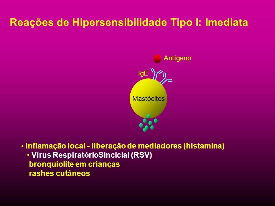 Reações de Hipersensibilidade Tipo I: Imediata Inflamação local - liberação de mediadores (histamina) Vírus RespiratórioSincicial (RSV) bronquiolite e