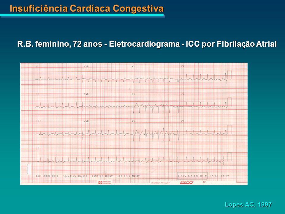 Insuficiência Cardíaca Congestiva R.B. feminino, 72 anos - Eletrocardiograma - ICC por Fibrilação Atrial Lopes AC, 1997