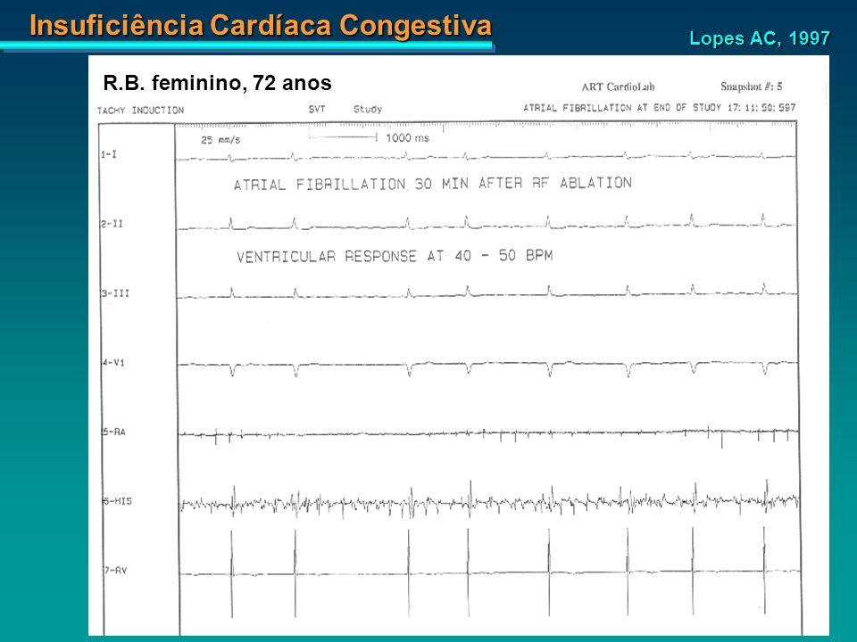 Insuficiência Cardíaca Congestiva Lopes AC, 1997 R.B. feminino, 72 anos