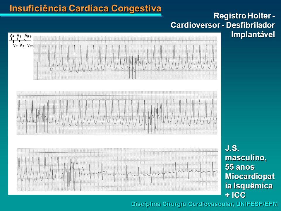 Insuficiência Cardíaca Congestiva Disciplina Cirurgia Cardiovascular, UNIFESP/EPM J.S. masculino, 55 anos Miocardiopat ia Isquêmica + ICC A P A S A RS