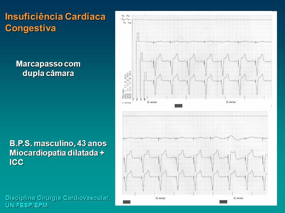 Insuficiência Cardíaca Congestiva B.P.S. masculino, 43 anos Miocardiopatia dilatada + ICC Disciplina Cirurgia Cardiovascular, UNIFESP/EPM Marcapasso c