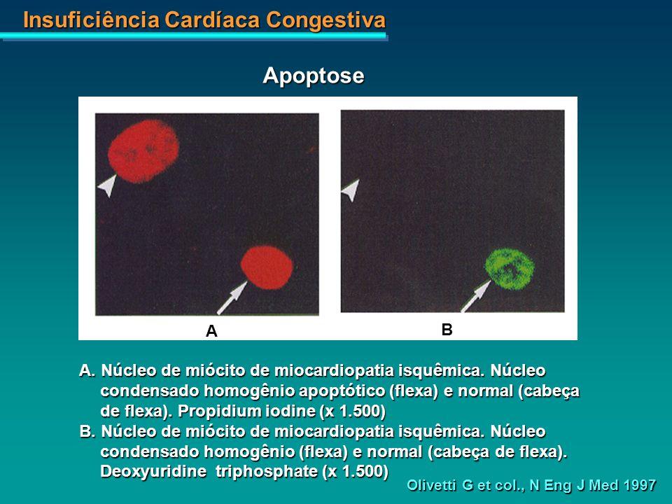 Insuficiência Cardíaca Congestiva A B A. Núcleo de miócito de miocardiopatia isquêmica. Núcleo condensado homogênio apoptótico (flexa) e normal (cabeç