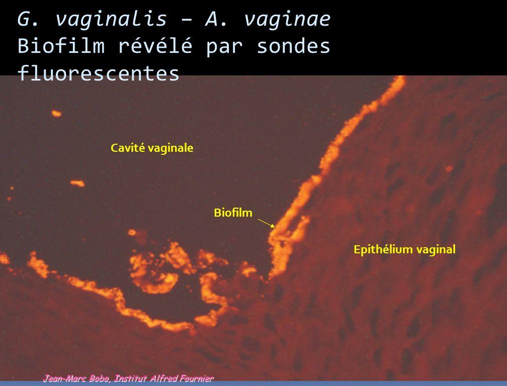 G. vaginalis – A. vaginae Biofilm révélé par sondes fluorescentes Cavité vaginale Epithélium vaginal Biofilm Jean-Marc Bobo, Institut Alfred Fournier