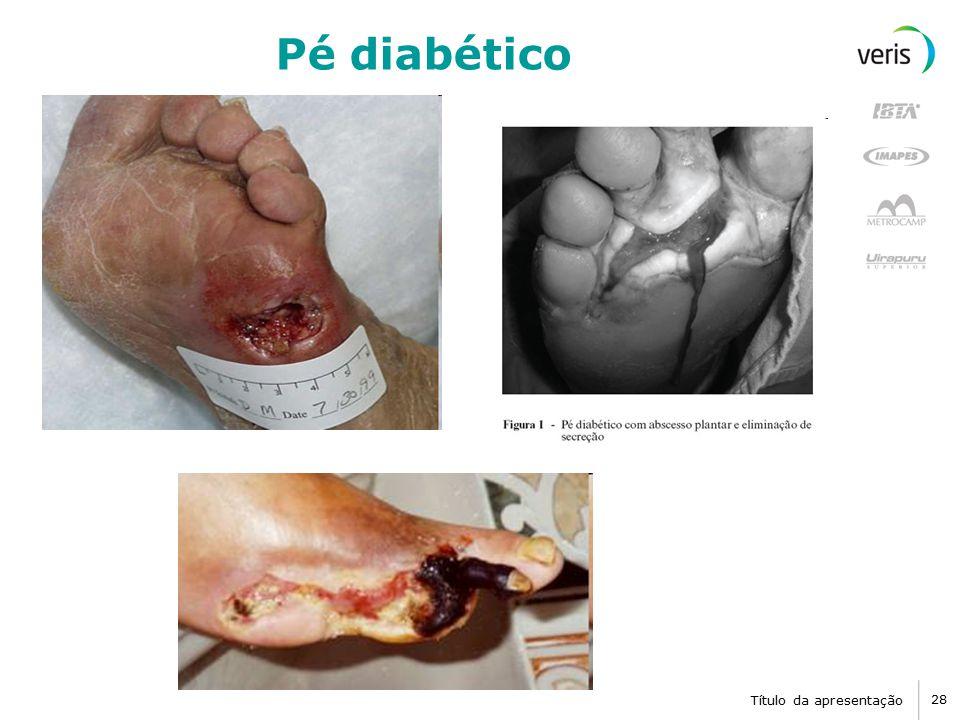 Título da apresentação 28 Pé diabético