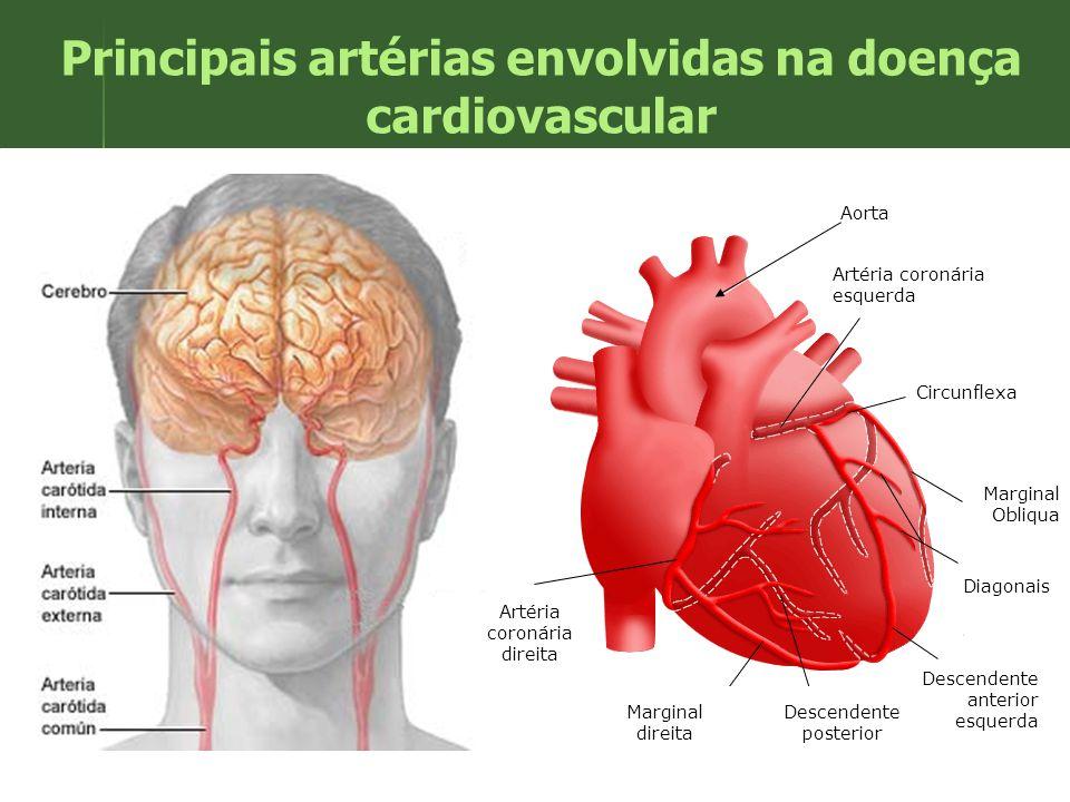 Principais artérias envolvidas na doença cardiovascular Artéria coronária esquerda Circunflexa Marginal Obliqua Diagonais Descendente anterior esquerd