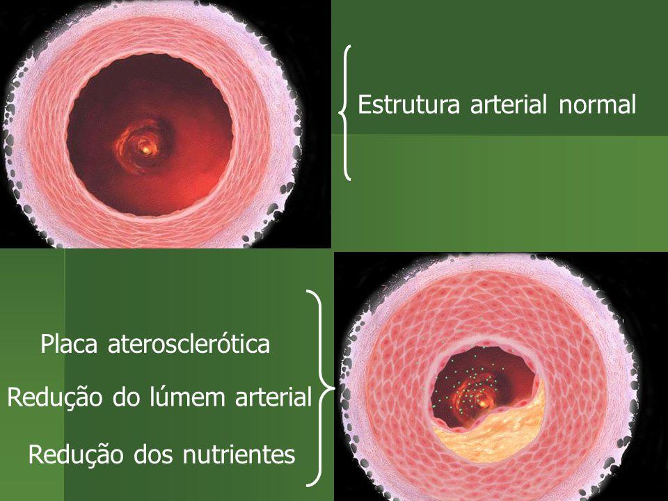 Estrutura arterial normal Redução do lúmem arterial Placa aterosclerótica Redução dos nutrientes