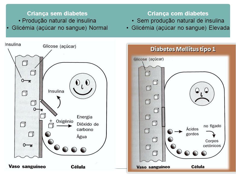 Diabetes Mellitus tipo 1 Criança sem diabetes Produção natural de insulina Glicémia (açúcar no sangue) Normal Criança com diabetes Sem produção natural de insulina Glicémia (açúcar no sangue) Elevada