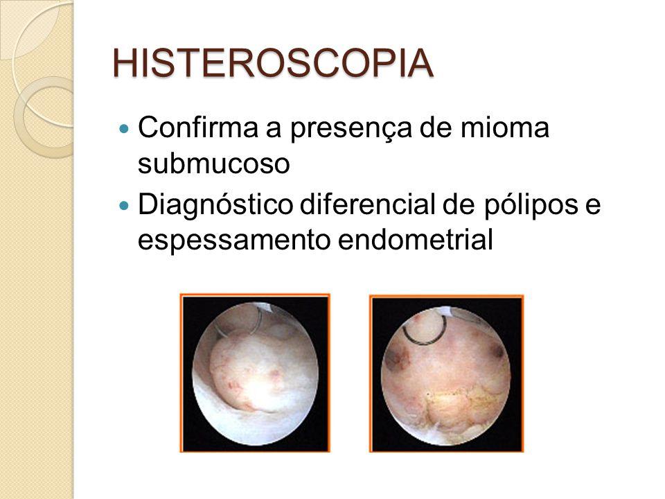 HISTEROSCOPIA Confirma a presença de mioma submucoso Diagnóstico diferencial de pólipos e espessamento endometrial