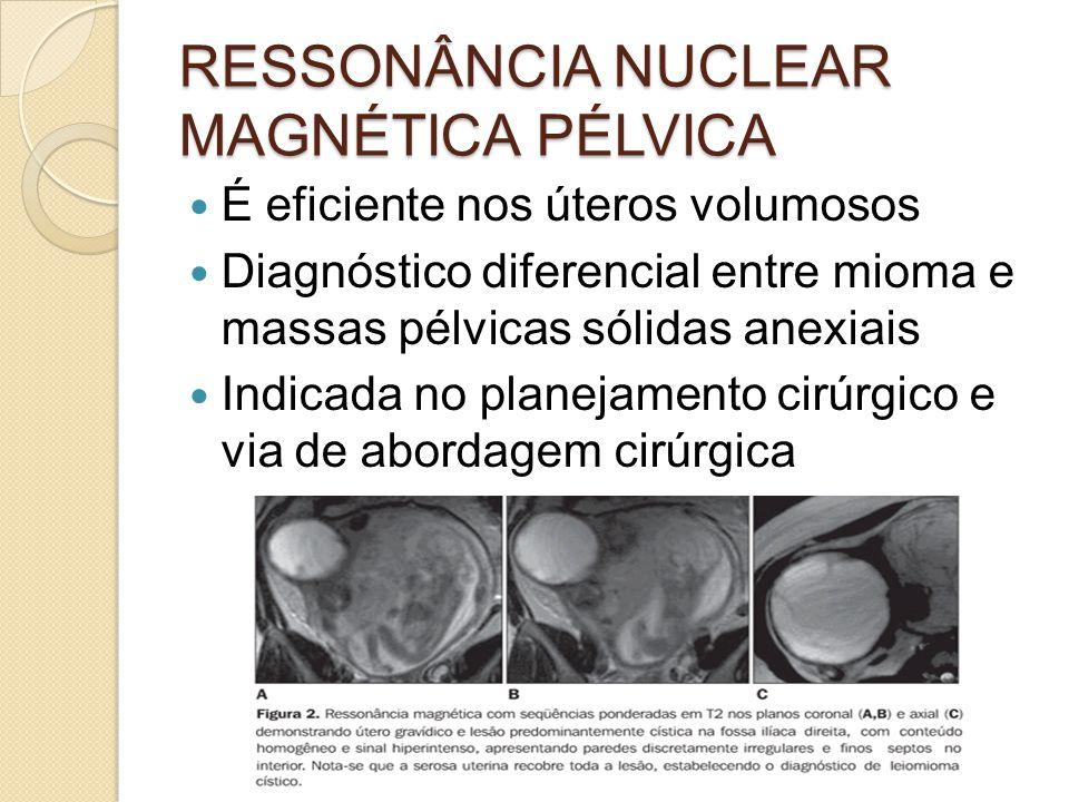 RESSONÂNCIA NUCLEAR MAGNÉTICA PÉLVICA É eficiente nos úteros volumosos Diagnóstico diferencial entre mioma e massas pélvicas sólidas anexiais Indicada no planejamento cirúrgico e via de abordagem cirúrgica