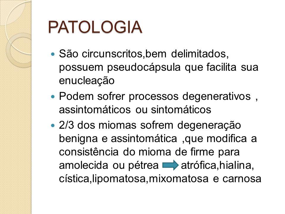 PATOLOGIA São circunscritos,bem delimitados, possuem pseudocápsula que facilita sua enucleação Podem sofrer processos degenerativos, assintomáticos ou sintomáticos 2/3 dos miomas sofrem degeneração benigna e assintomática,que modifica a consistência do mioma de firme para amolecida ou pétrea atrófica,hialina, cística,lipomatosa,mixomatosa e carnosa